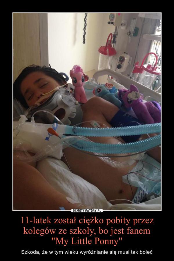 """11-latek został ciężko pobity przez kolegów ze szkoły, bo jest fanem""""My Little Ponny"""" – Szkoda, że w tym wieku wyróżnianie się musi tak boleć"""