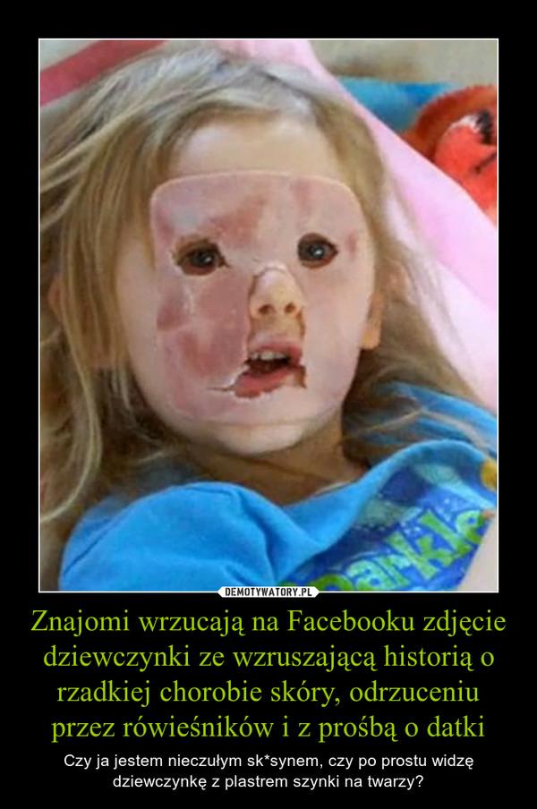 Znajomi wrzucają na Facebooku zdjęcie dziewczynki ze wzruszającą historią o rzadkiej chorobie skóry, odrzuceniu przez rówieśników i z prośbą o datki – Czy ja jestem nieczułym sk*synem, czy po prostu widzę dziewczynkę z plastrem szynki na twarzy?