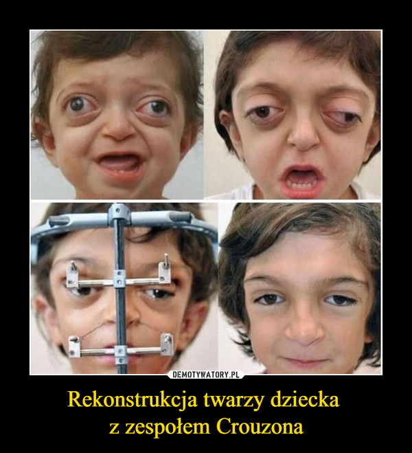Rekonstrukcja twarzy dziecka  z zespołem Crouzona
