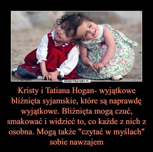 """Kristy i Tatiana Hogan- wyjątkowe bliźnięta syjamskie, które są naprawdę wyjątkowe. Bliźnięta mogą czuć, smakować i widzieć to, co każde z nich z osobna. Mogą także """"czytać w myślach"""" sobie nawzajem"""