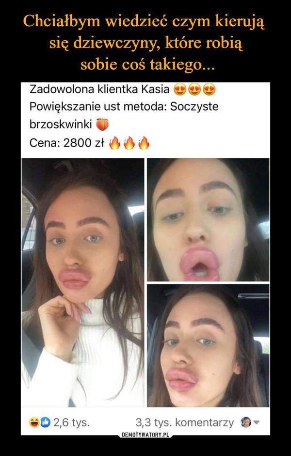–  Zadowolona klientka Kasia Powiększanie ust metoda: Soczyste brzoskwinki - Cena: 2800 zł