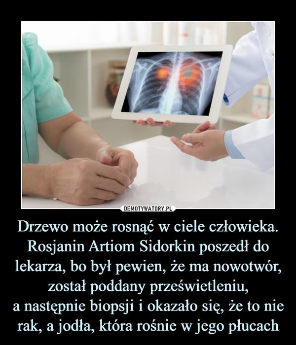 Drzewo może rosnąć w ciele człowieka. Rosjanin Artiom Sidorkin poszedł do lekarza, bo był pewien, że ma nowotwór, został poddany prześwietleniu,a następnie biopsji i okazało się, że to nie rak, a jodła, która rośnie w jego płucach –