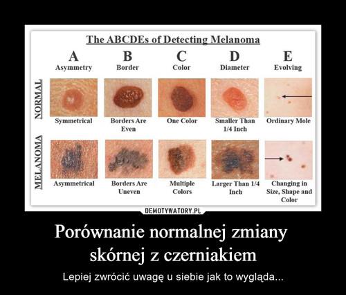 Porównanie normalnej zmiany  skórnej z czerniakiem