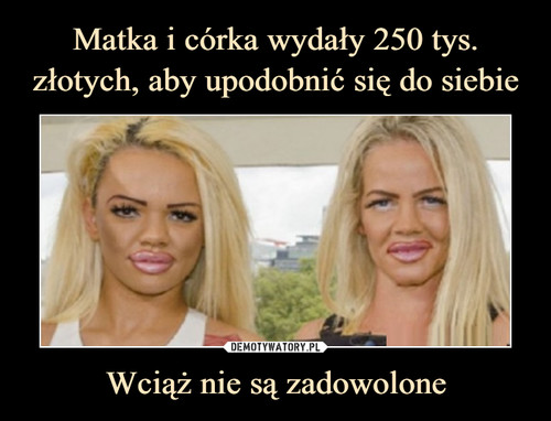 Matka i córka wydały 250 tys. złotych, aby upodobnić się do siebie Wciąż nie są zadowolone